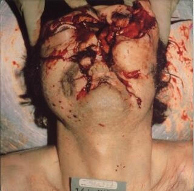 headache13bruk